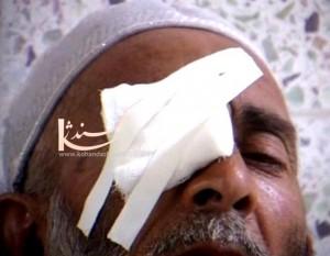 شفاخانه نور هرات - مريضان